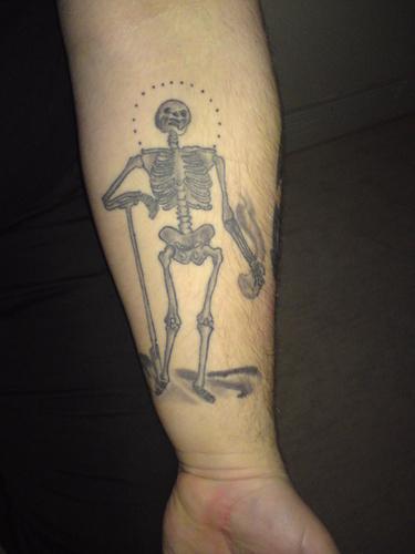 Unterarm links