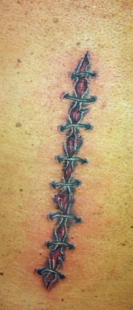 Tattoo Auf Narbe