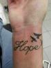 HOPE Handgelenk