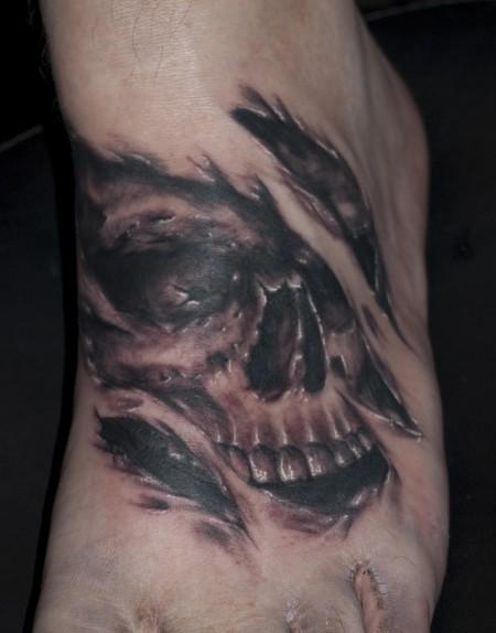 Skull fuss