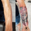 Colour tattoo (Narben)