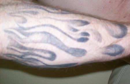 So sieht ein brennender Unterarm aus: