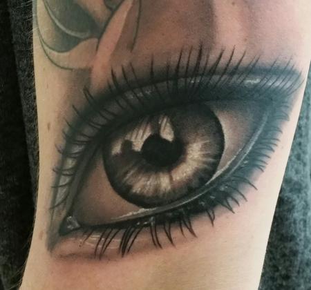 Auge Oberarm