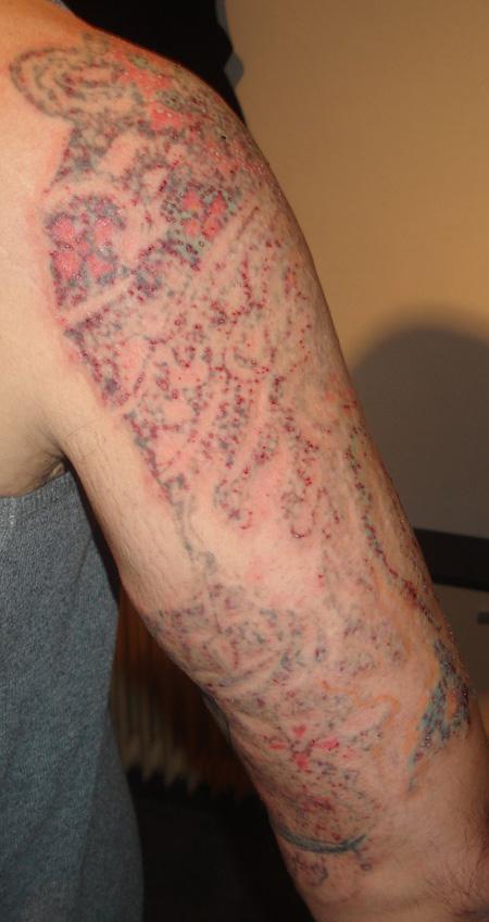 Aktuelle Laserbehandlung Tattoo Bewertungde