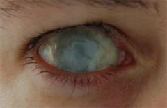 Dead Eye's Bild